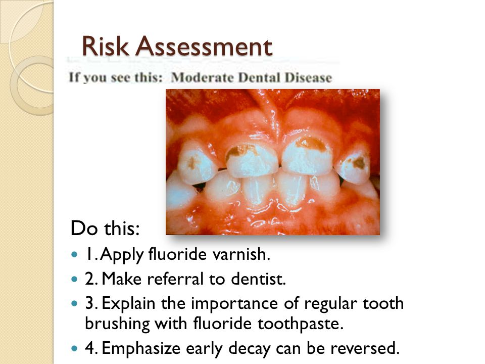Risk Assessment Do this: 1. Apply fluoride varnish. 2. Make referral to dentist. 3. Explain the importance of regular tooth brushing with fluoride too