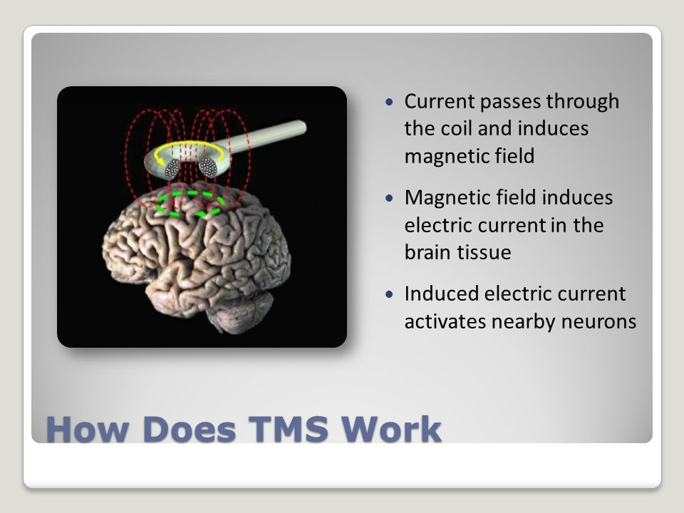 How Does TMS Work Current passes through the coil and induces magnetic field Magnetic field induces electric current in the brain tissue Induced electric current activates nearby neurons