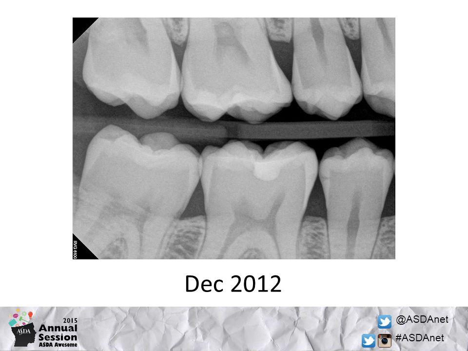 @ASDAnet #ASDAnet Dec 2012