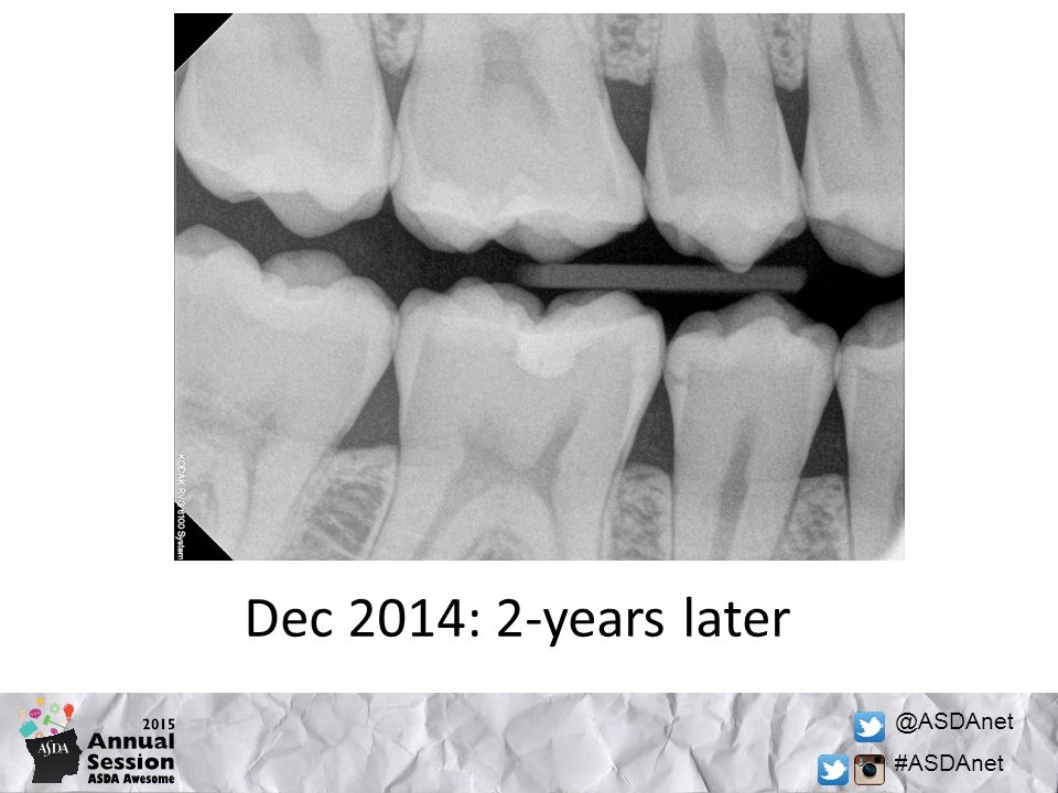 @ASDAnet #ASDAnet Dec 2014: 2-years later