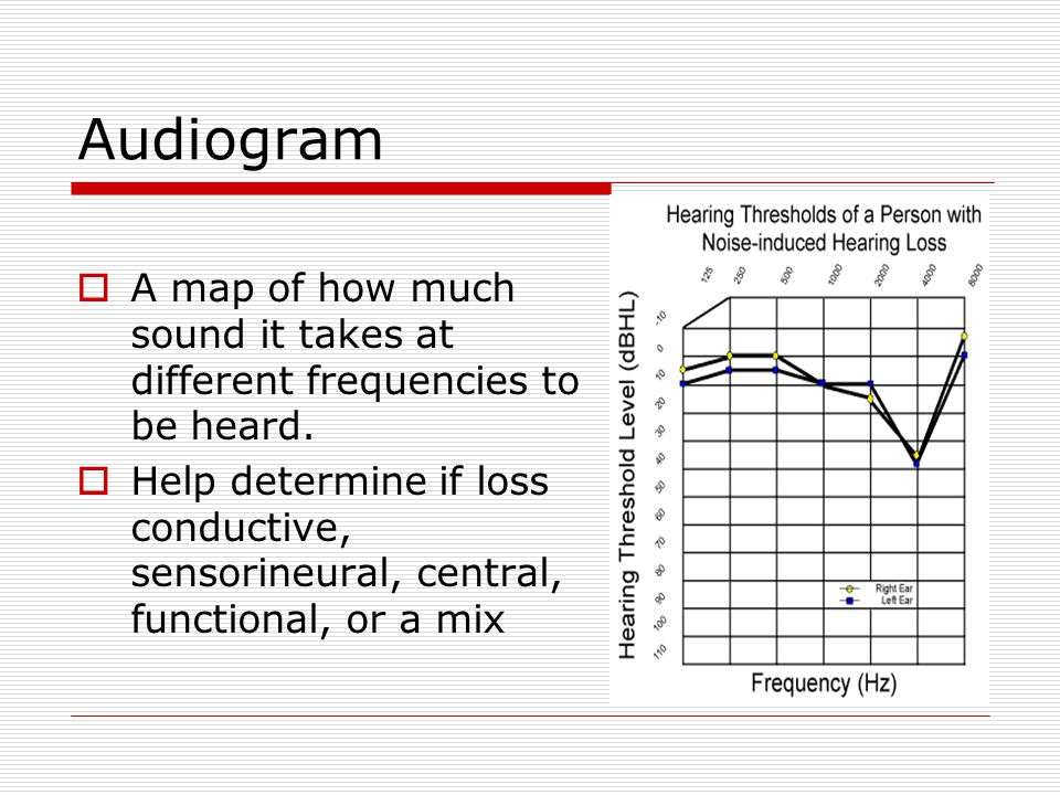 Audiogram  A map of how much sound it takes at different frequencies to be heard.