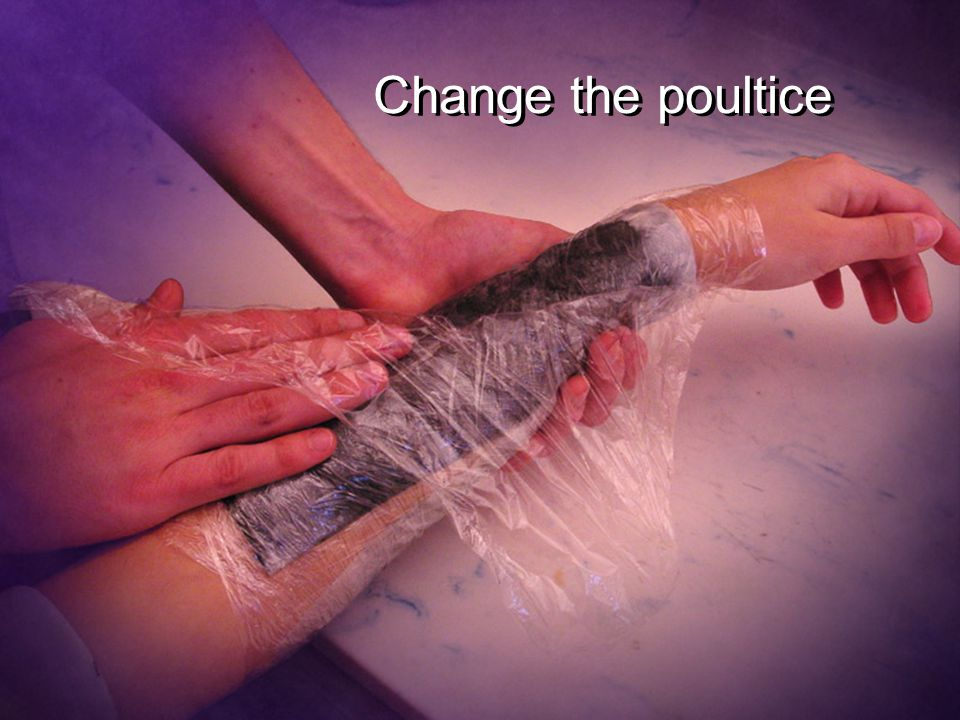 Change the poultice