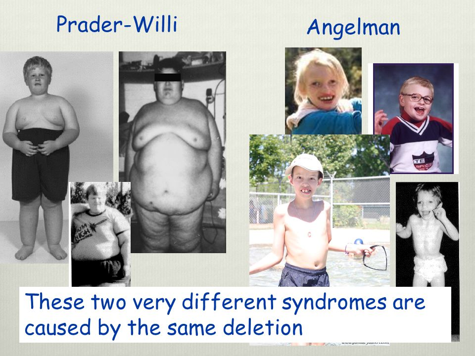 Prader-Willi Angelman These two very different syndromes are caused by the same deletion