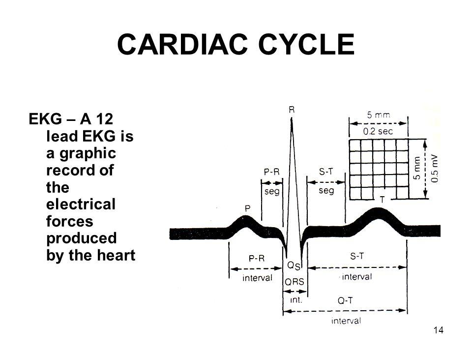 14 CARDIAC CYCLE EKG – A 12 lead EKG is a graphic record of the electrical forces produced by the heart