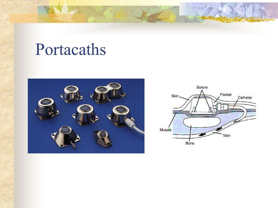 Portacaths