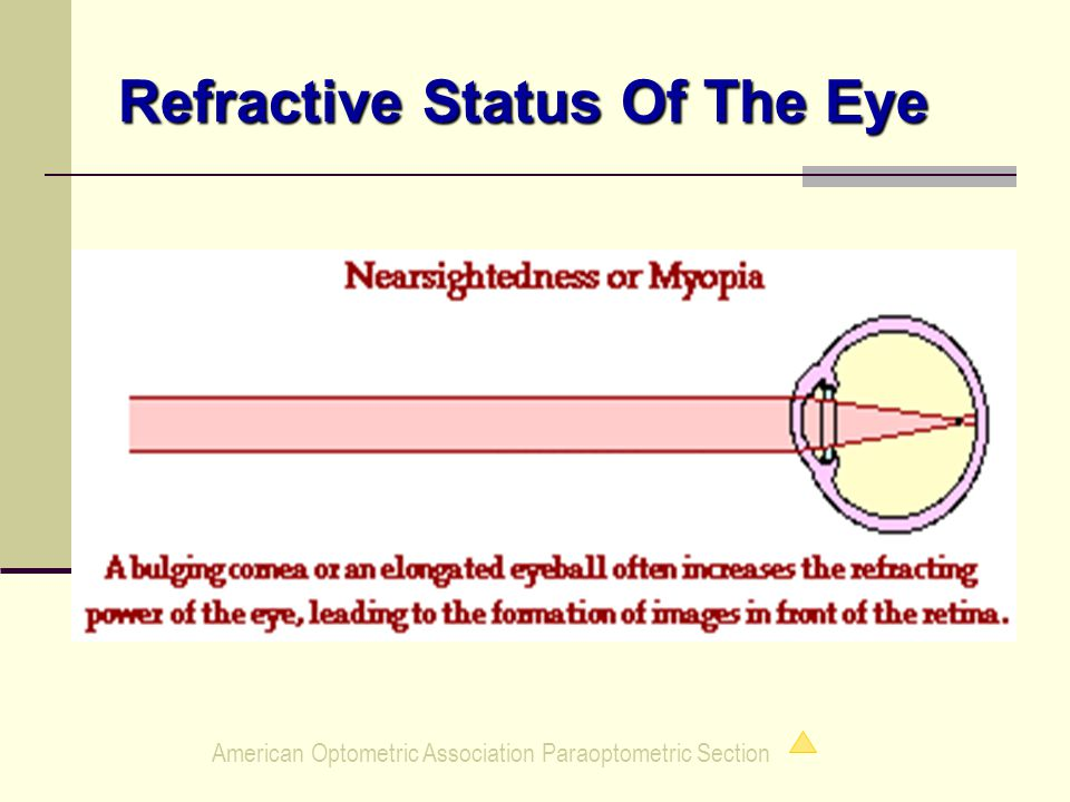 American Optometric Association Paraoptometric Section Refractive Status Of The Eye