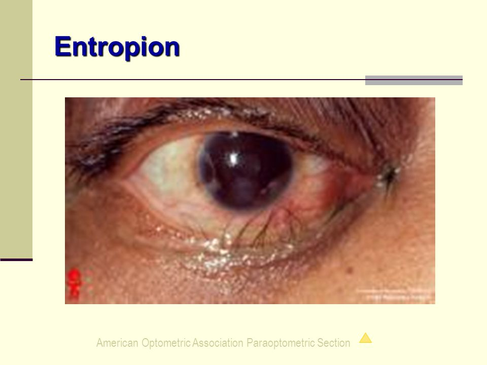 American Optometric Association Paraoptometric Section Entropion