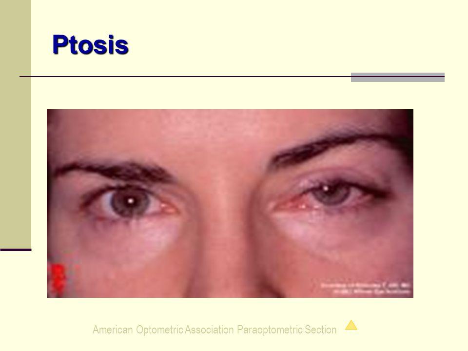 Ptosis