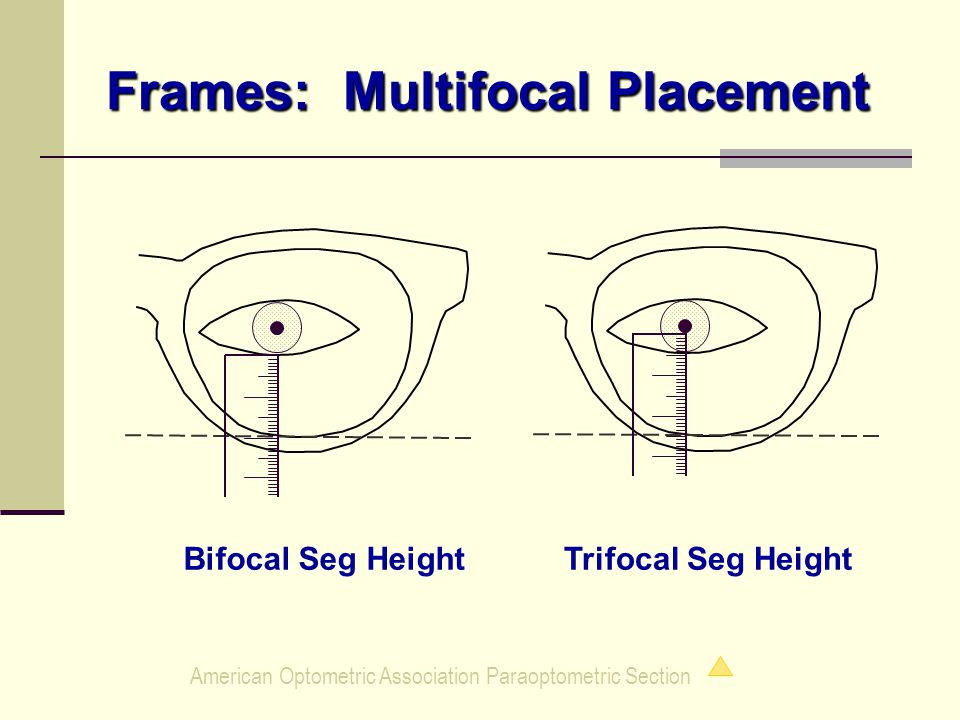American Optometric Association Paraoptometric Section Frames: Multifocal Placement Trifocal Seg HeightBifocal Seg Height