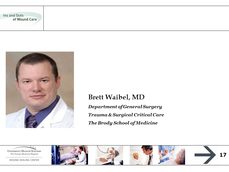 17 Brett Waibel, MD Department of General Surgery Trauma & Surgical Critical Care The Brody School of Medicine