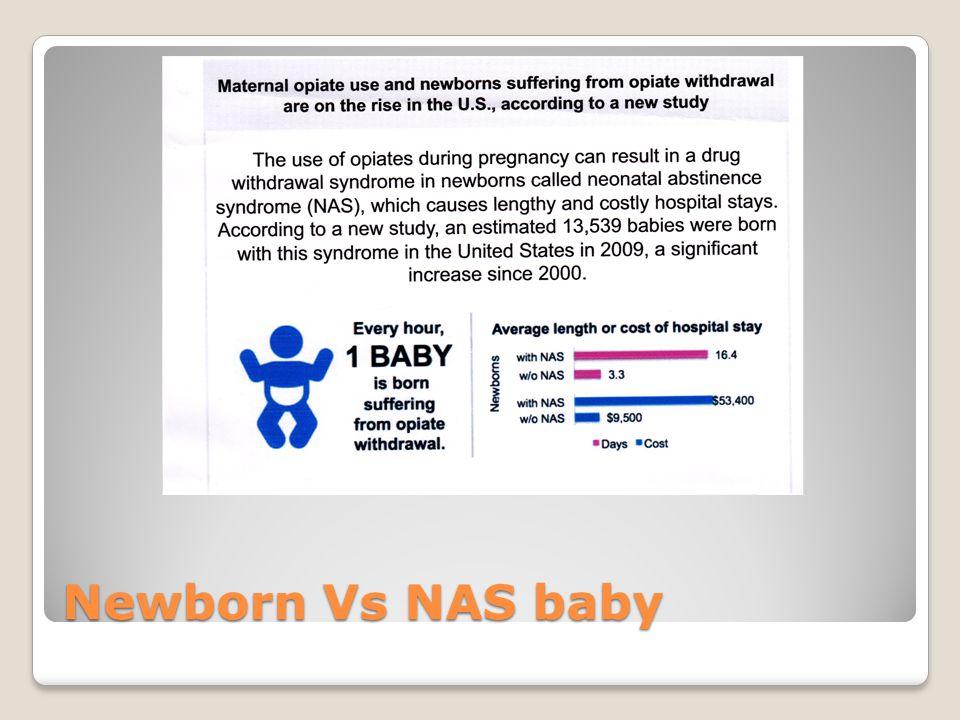 Newborn Vs NAS baby
