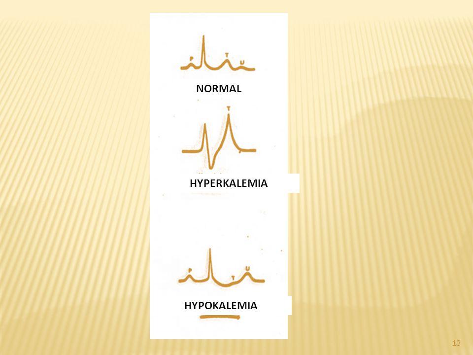 NORMAL HYPERKALEMIA HYPOKALEMIA 13