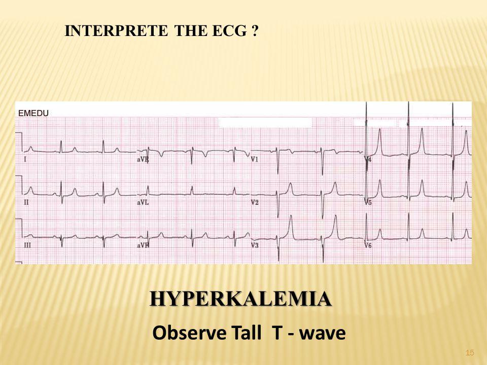 INTERPRETE THE ECG HYPERKALEMIA Observe Tall T - wave 15