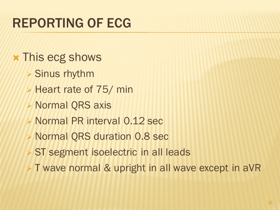 REPORTING OF ECG  This ecg shows  Sinus rhythm  Heart rate of 75/ min  Normal QRS axis  Normal PR interval 0.12 sec  Normal QRS duration 0.8 sec  ST segment isoelectric in all leads  T wave normal & upright in all wave except in aVR 16