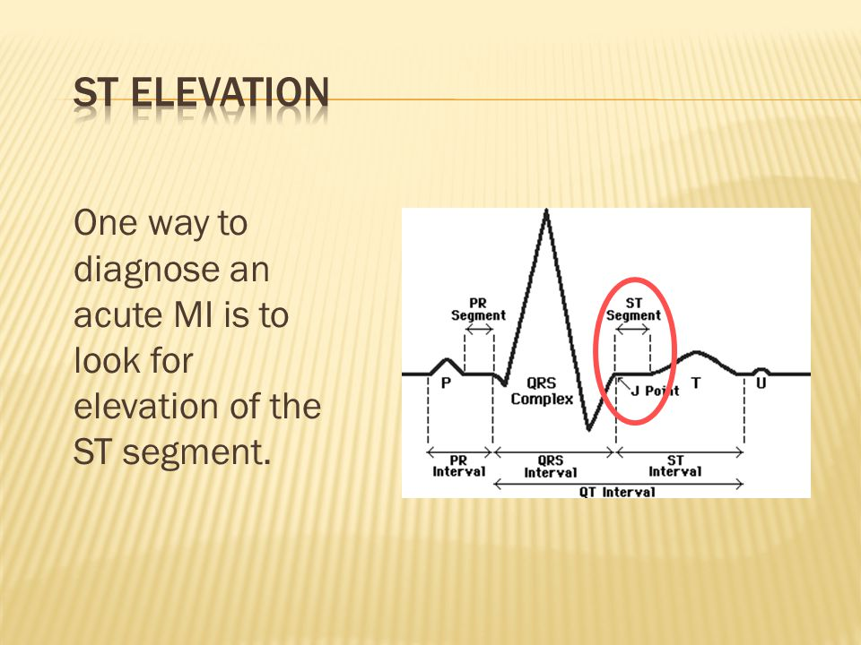 One way to diagnose an acute MI is to look for elevation of the ST segment.