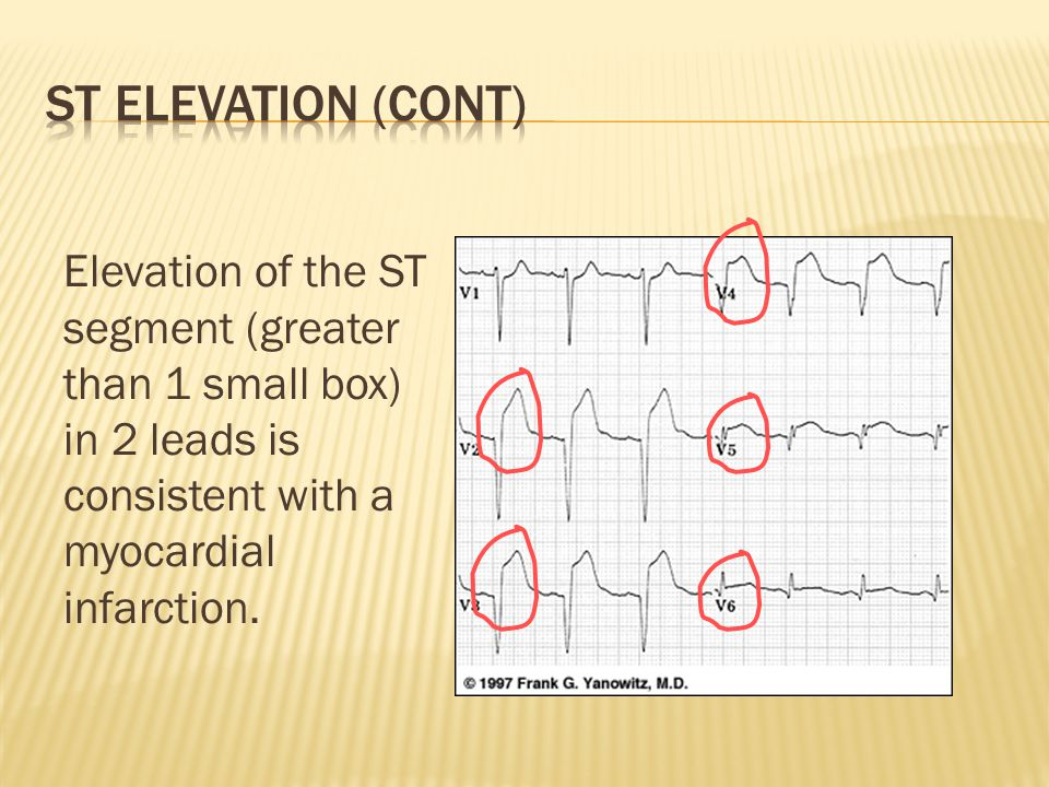 Elevation of the ST segment (greater than 1 small box) in 2 leads is consistent with a myocardial infarction.