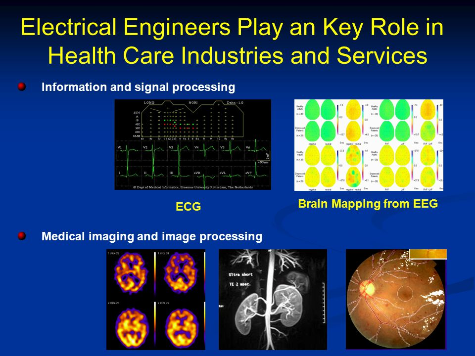 Electrical Engineers Play an Key Role in Health Care Industries and Services Modelling and control Telemedicine