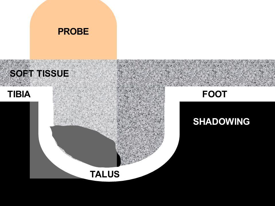 PROBE SOFT TISSUE TIBIA SHADOWING TALUS FOOT