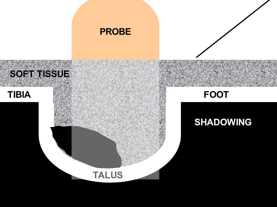 TIBIA TALUS FOOT SHADOWING SOFT TISSUE PROBE