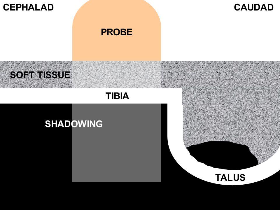 PROBE TIBIA TALUS SOFT TISSUE CEPHALADCAUDAD SHADOWING