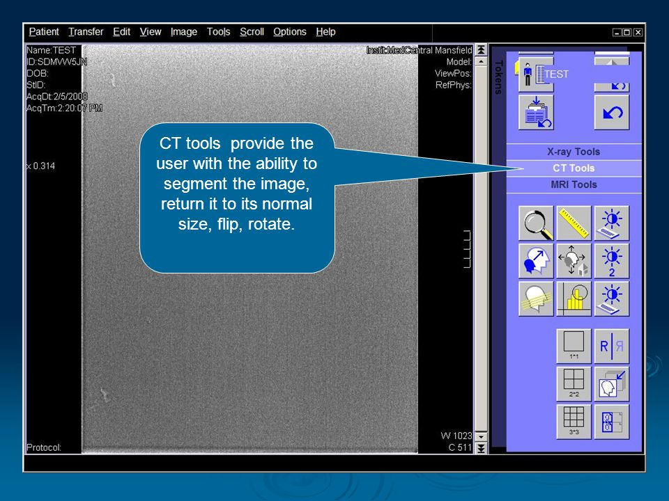 CT tools provide the user with the ability to segment the image, return it to its normal size, flip, rotate.