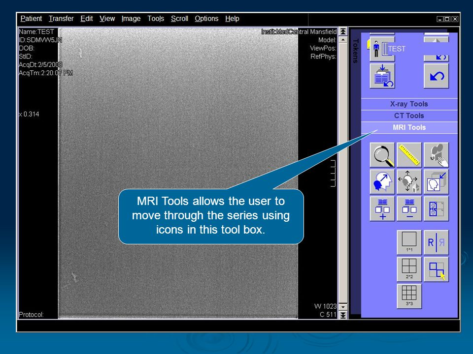 MRI Tools allows the user to move through the series using icons in this tool box.