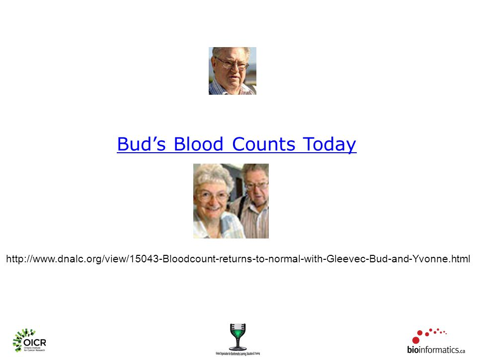 Bud's Blood Counts Today http://www.dnalc.org/view/15043-Bloodcount-returns-to-normal-with-Gleevec-Bud-and-Yvonne.html