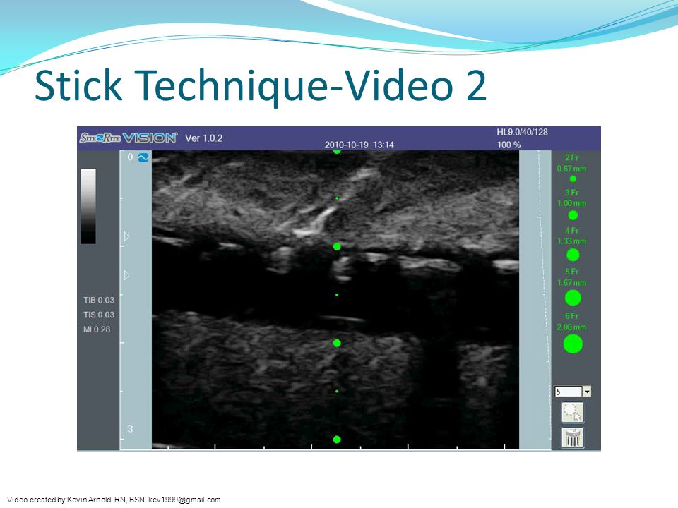 Stick Technique-Video 2 Video created by Kevin Arnold, RN, BSN. kev1999@gmail.com