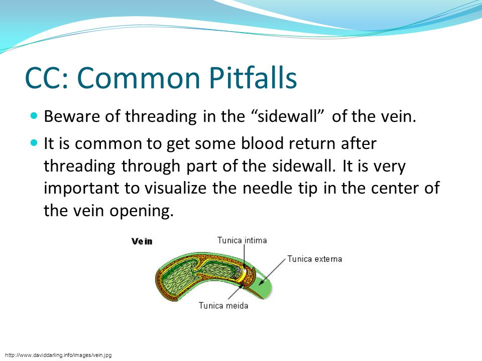 """CC: Common Pitfalls Beware of threading in the """"sidewall"""" of the vein. It is common to get some blood return after threading through part of the sidew"""