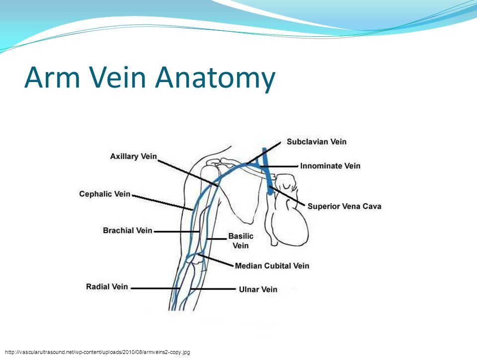 CC: Common Pitfalls Beware of threading in the sidewall of the vein.