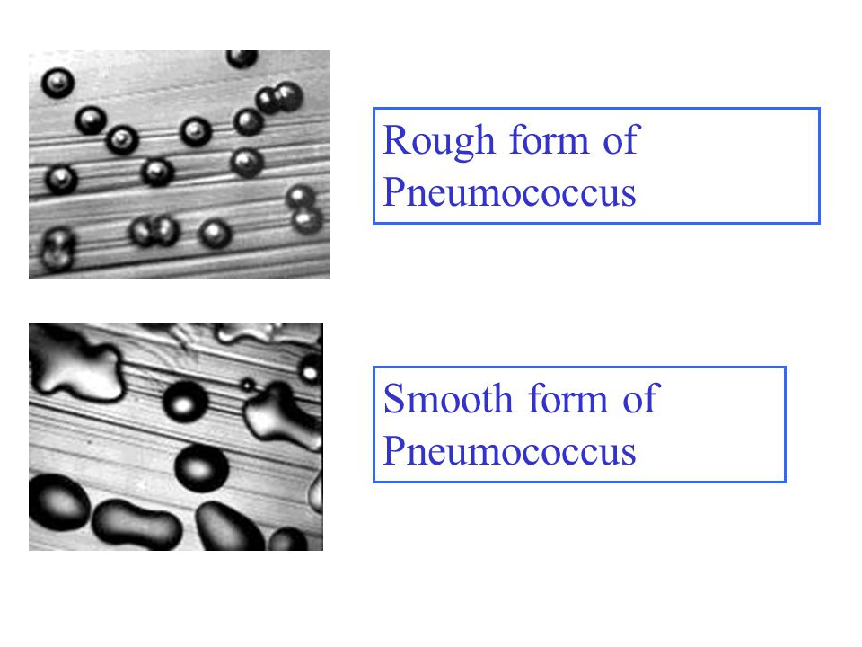 Rough form of Pneumococcus Smooth form of Pneumococcus
