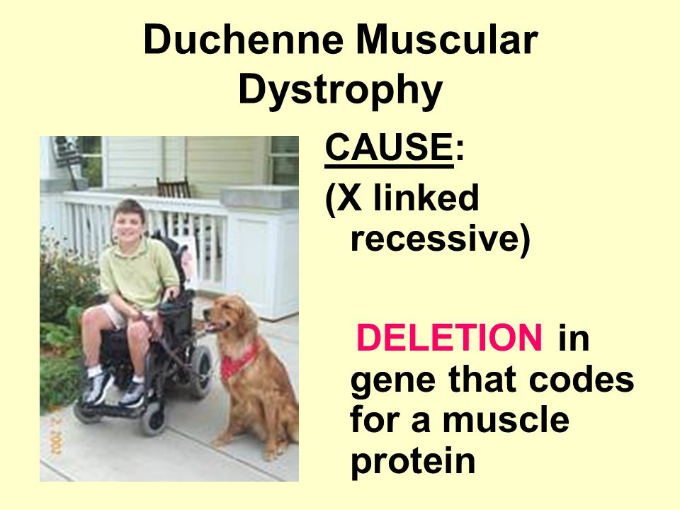 Duchenne Muscular Dystrophy CAUSE: (X linked recessive) DELETION in gene that codes for a muscle protein