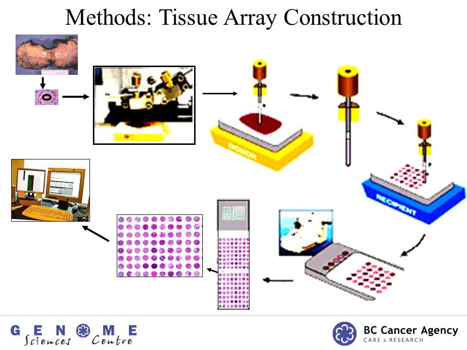 Methods: Tissue Array Construction