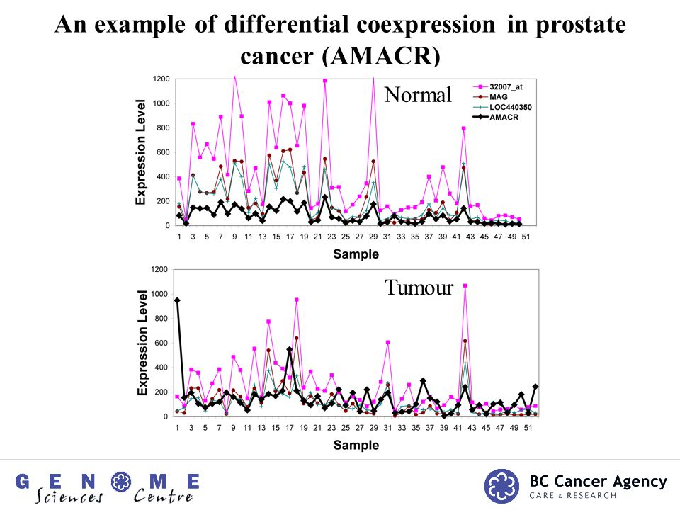 An example of differential coexpression in prostate cancer (AMACR) Normal Tumour