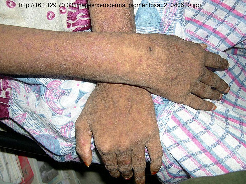 http://162.129.70.33/images/xeroderma_pigmentosa_2_040620.jpg