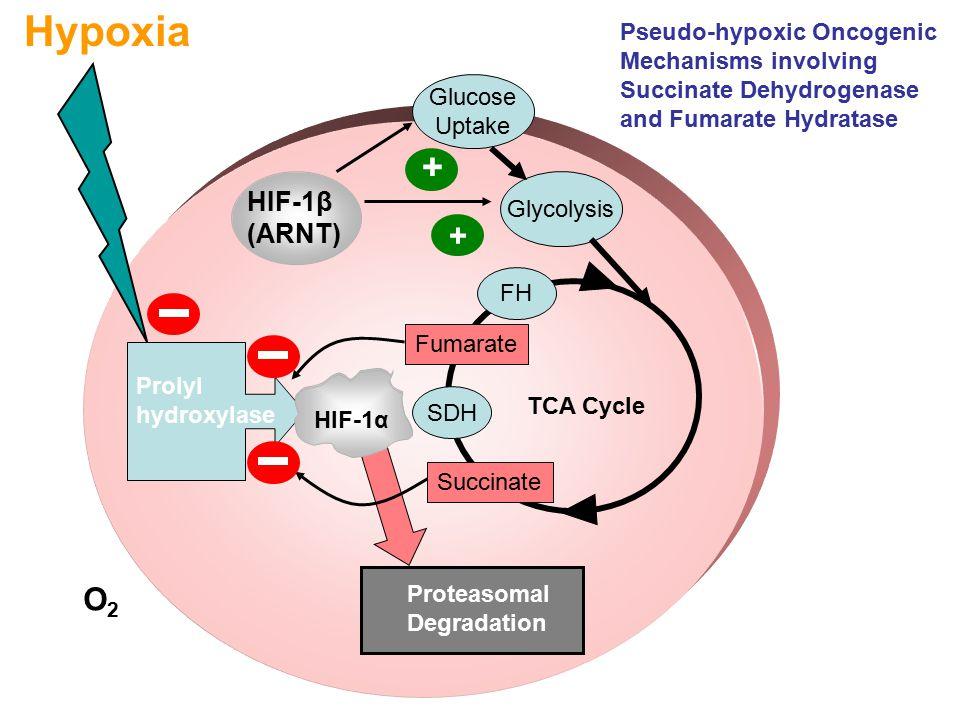 HIF-1β (ARNT) HIF-1α Hypoxia Proteasomal Degradation Prolyl hydroxylase TCA Cycle SDH FH Glucose Uptake Glycolysis + + Succinate Fumarate HIF-1α O2O2 Pseudo-hypoxic Oncogenic Mechanisms involving Succinate Dehydrogenase and Fumarate Hydratase
