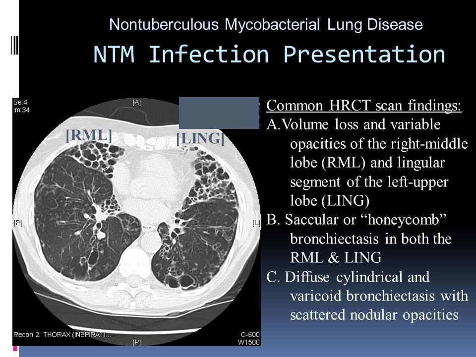 Nontuberculous Mycobacterial Lung Disease Common HRCT scan findings: A.Volume loss and variable opacities of the right-middle lobe (RML) and lingular segment of the left-upper lobe (LING) B.