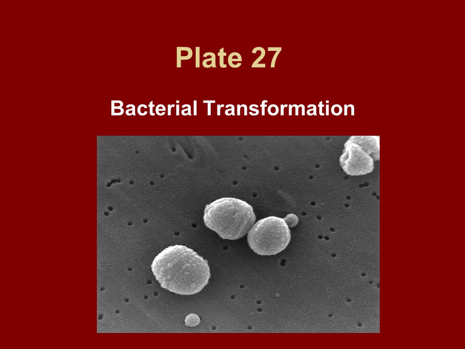 Plate 27 Bacterial Transformation