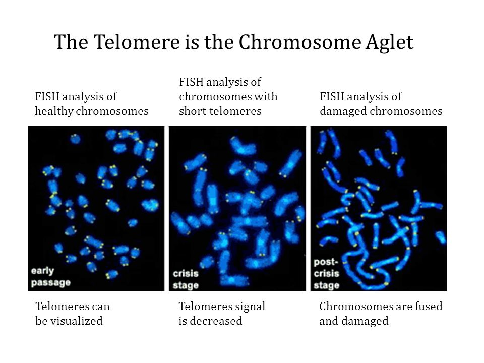 The Telomere is the Chromosome Aglet FISH analysis of healthy chromosomes Telomeres can be visualized FISH analysis of chromosomes with short telomere