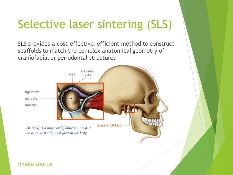 Selective laser sintering (SLS) SLS provides a cost-effective, efficient method to construct scaffolds to match the complex anatomical geometry of craniofacial or periodontal structures Image source