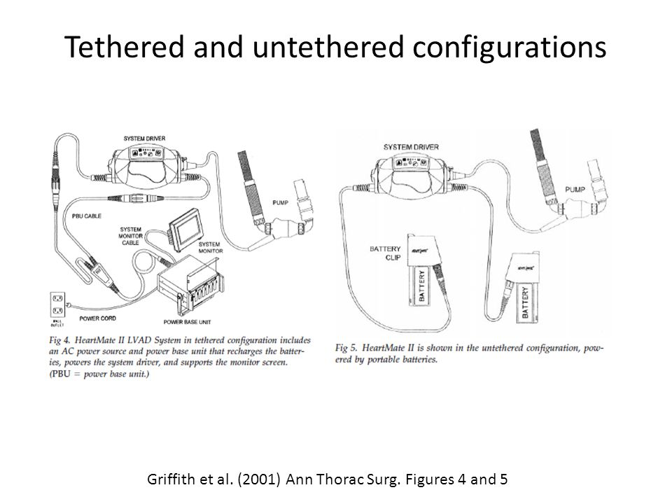 Tethered and untethered configurations Griffith et al. (2001) Ann Thorac Surg. Figures 4 and 5
