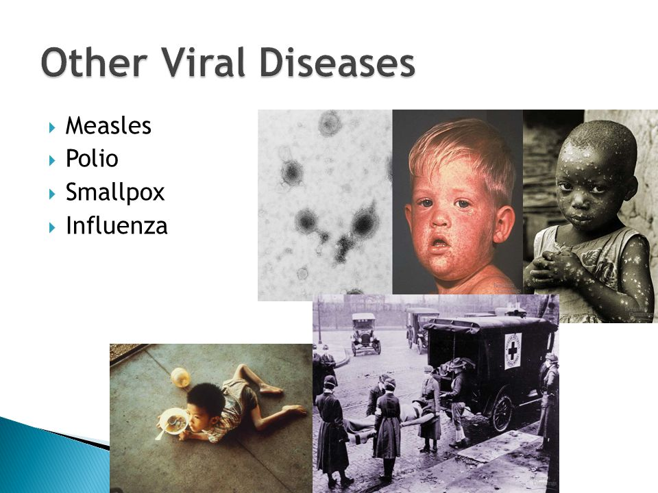  Measles  Polio  Smallpox  Influenza