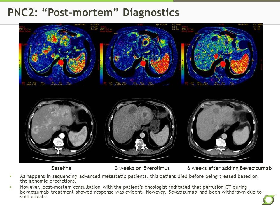 PNC2: Post-mortem Diagnostics Baseline 3 weeks on Everolimus6 weeks after adding Bevacizumab As happens in sequencing advanced metastatic patients, this patient died before being treated based on the genomic predictions.