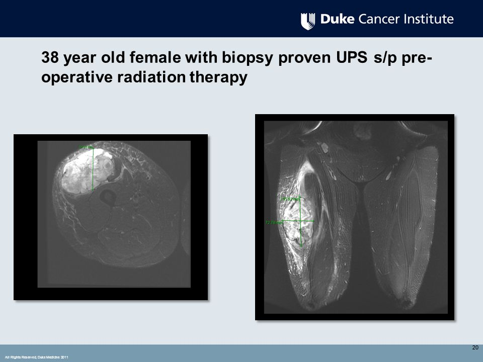 All Rights Reserved, Duke Medicine 2011 20 38 year old female with biopsy proven UPS s/p pre- operative radiation therapy 20
