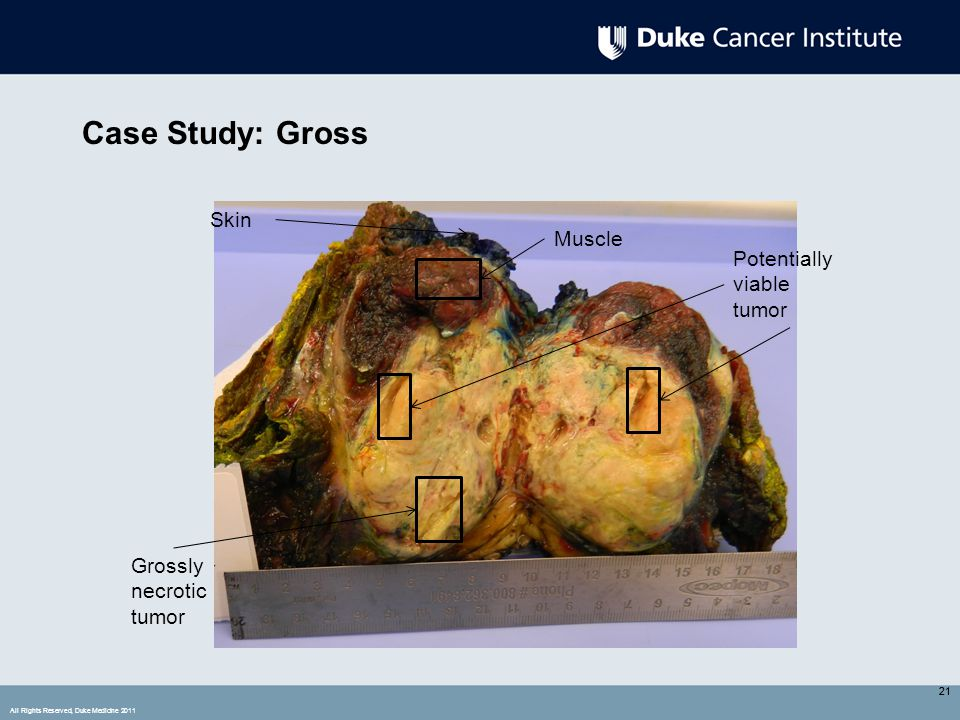 All Rights Reserved, Duke Medicine 2011 21 Case Study: Gross 21 Potentially viable tumor Grossly necrotic tumor Muscle Skin