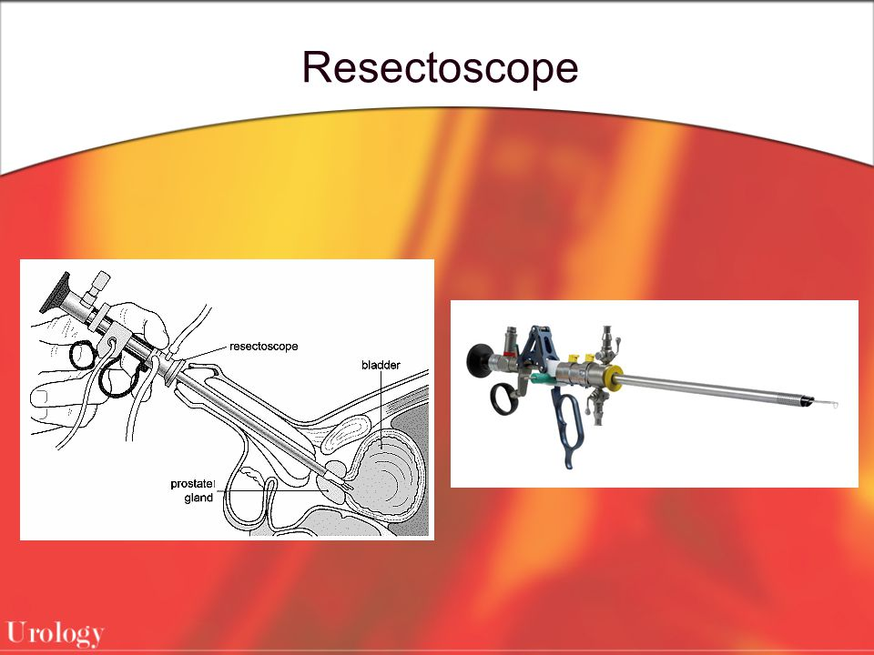 Resectoscope