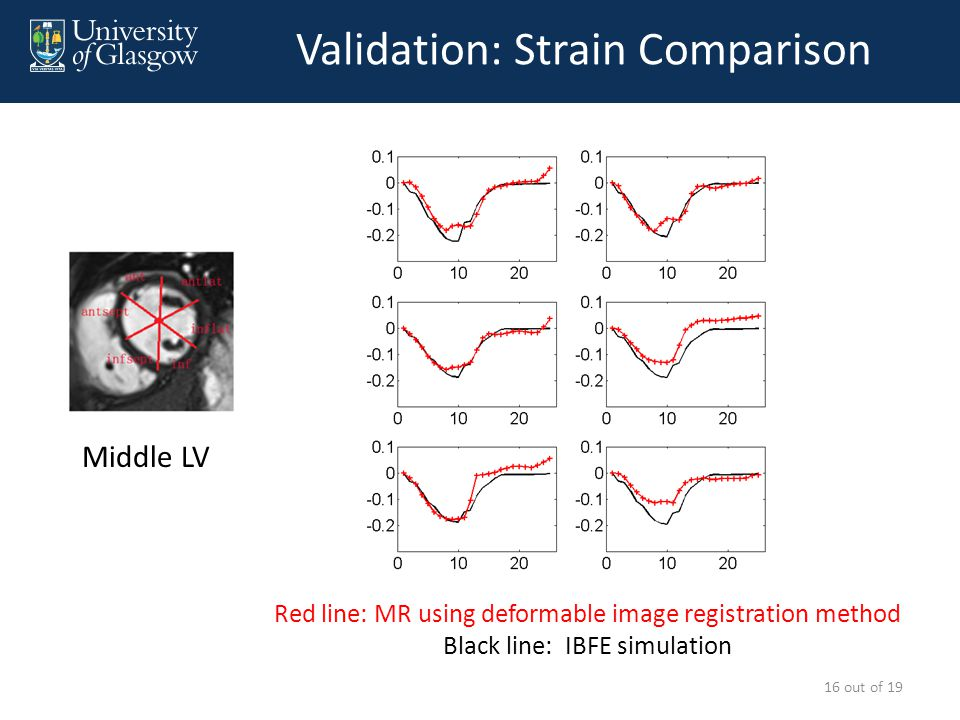 Validation: Strain Comparison Middle LV Red line: MR using deformable image registration method Black line: IBFE simulation 16 out of 19