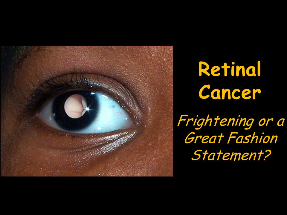 Retinal Cancer Frightening or a Great Fashion Statement
