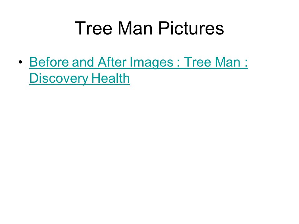 Tree Man Pictures Before and After Images : Tree Man : Discovery HealthBefore and After Images : Tree Man : Discovery Health