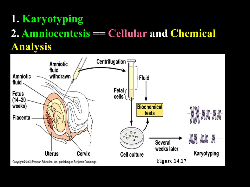 1. Karyotyping 2. Amniocentesis == Cellular and Chemical Analysis Figure 14.17